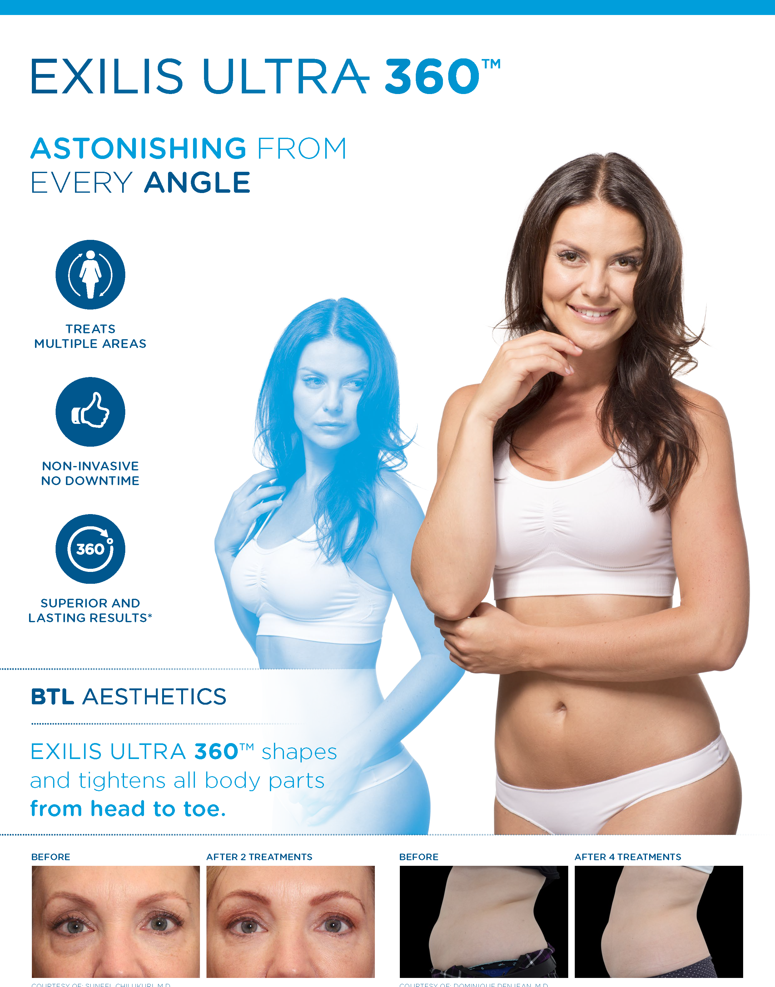 Exilis Ultra 360 Look Good From Any Angle