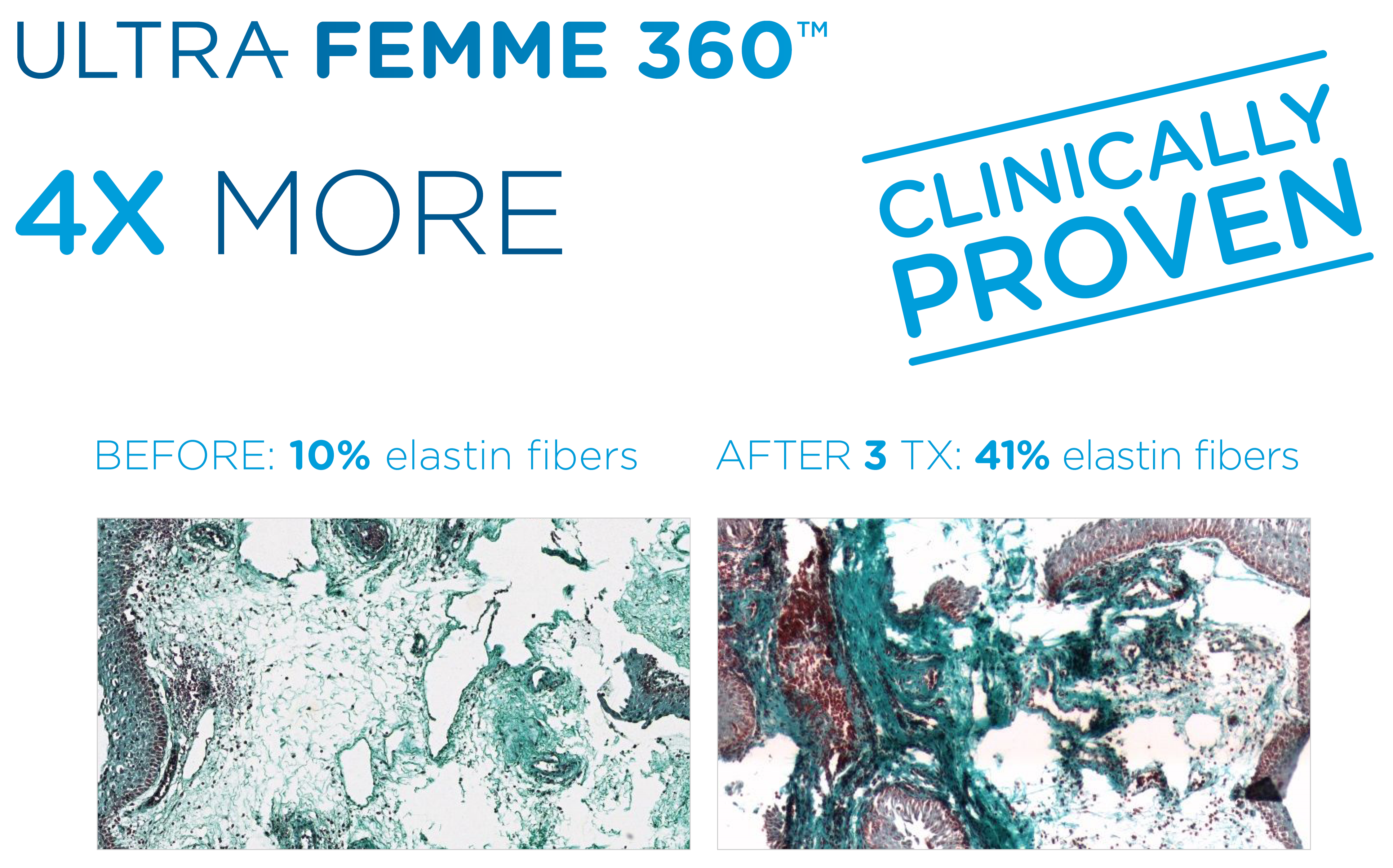 Ultra Femme 360 Clinically Proven