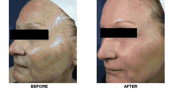 CO2 Fractional Laser Skin Resurfacing