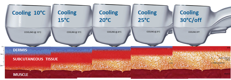 Exilis Ultra 360 Cooling