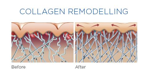 Ultra Femme 360 Collagen Remodeling