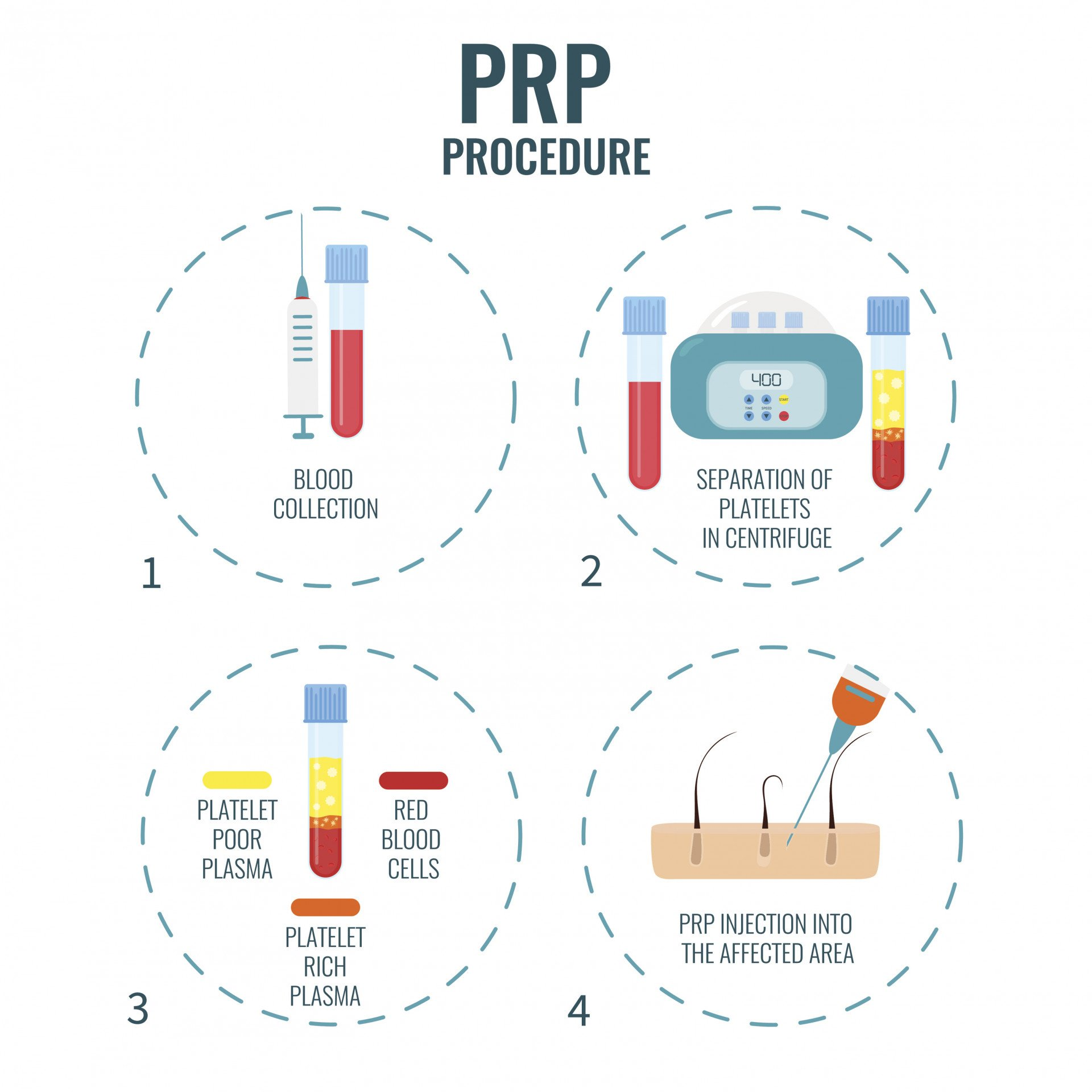Prp treatment for sexual dysfunction o shot